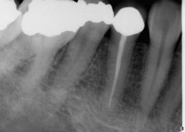 root-canal-after